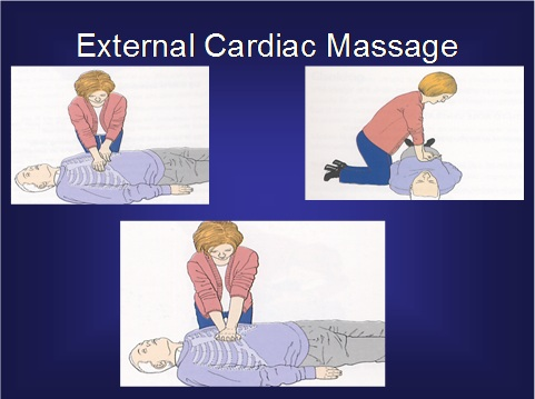 External Cardiac Massage
